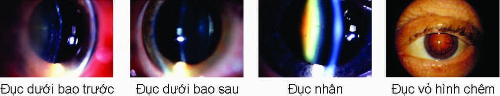 duc-t3-tuoi-gia-benh-vien-mat-quoc-te-dnd-128-bui-thi-xuan-hn-0969128128