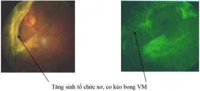 vong-mac-2-benh-vien-mat-quoc-te-dnd-128-bui-thi-xuan-hn-0969128128
