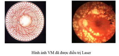 vong-mac-3t-benh-vien-mat-quoc-te-dnd-128-bui-thi-xuan-hn-0969128128