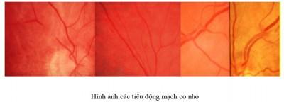 vong-mac-dong-mach-benh-vien-mat-quoc-te-dnd-128-bui-thi-xuan-hn-0969128128