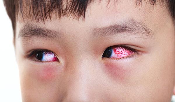 đau mắt đỏ có thể lây lan