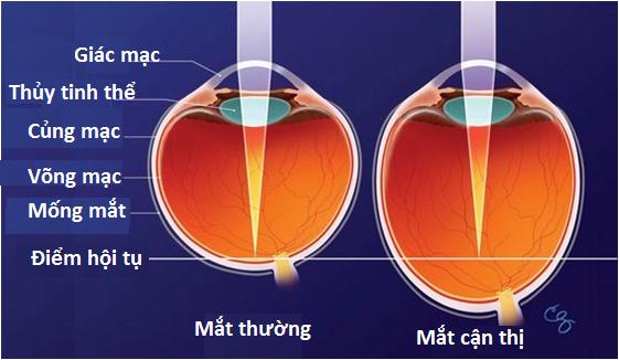 mắt cận thị so với mắt thường