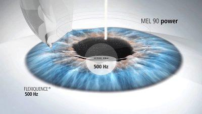 điều trị cận thị bằng phẫu thuật khúc xạ khá an toàn