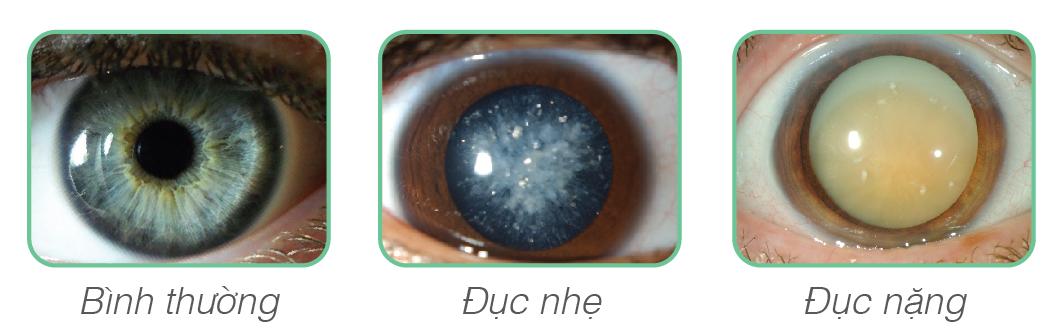 trieu-chung-cua-benh-duc-thuy-tinh-the