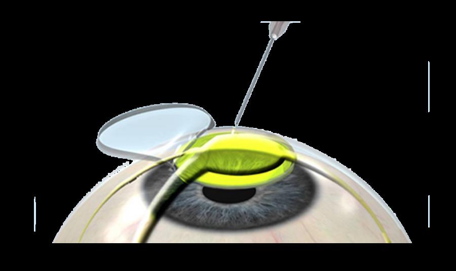 kỹ thuật Crosslinking với mổ LASIK - FEMTO - bệnh viện Mắt Quốc tế DND
