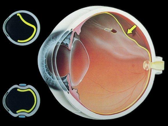 mức độ vẩn đục của mắt