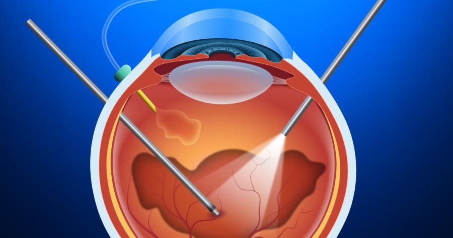 Phẫu thuật vẩn đục dịch kính