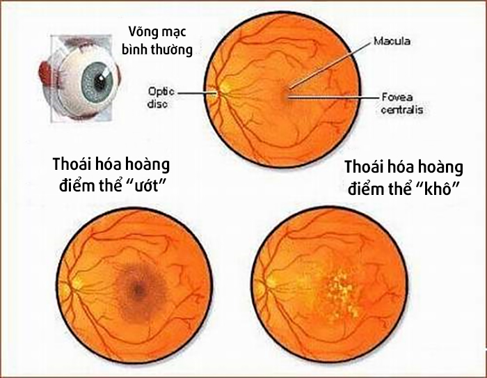 chụp đáy mắt màu -Mắt Quốc tế DND