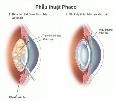 phẫu thuật Phaco